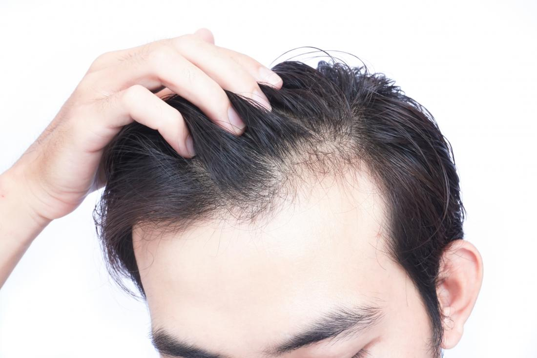 vitamin-d-deficiency-can-lead-to-hair-loss.jpg