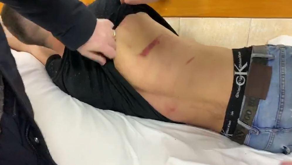 PD: Protestuesi mbahet me pranga në krevatin e spitalit