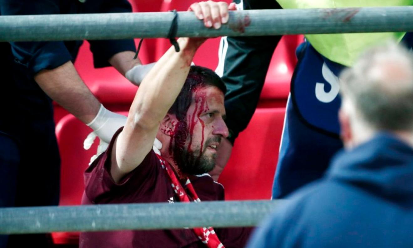 Skandal! Tifozët e Bayern-it sulmohen dhe gjakosen në Pire!
