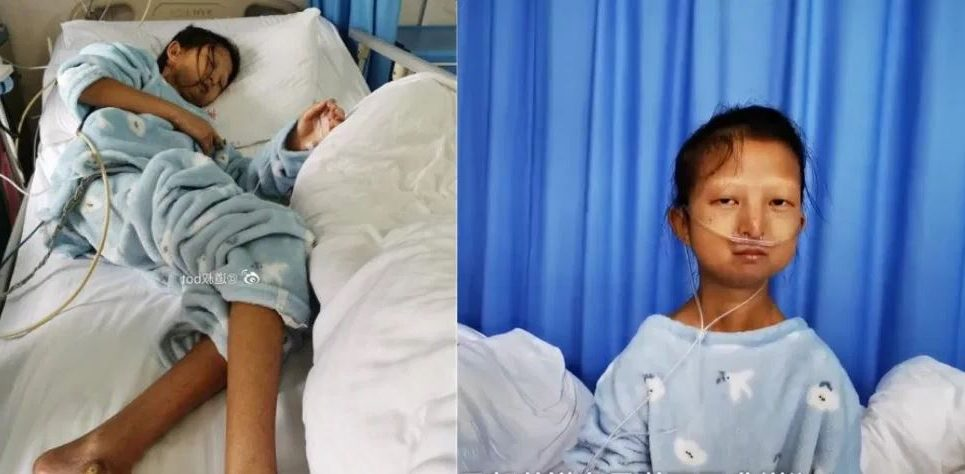 Studentja 24-vjeçare gjen vdekjen nga kequshqyerja, shpenzonte gjithçka për të kuruar vëllanë