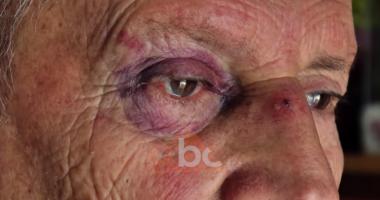 """VIDEO/ """"Me gishta të thyer dhe sy të nxirë"""", çifti rrëfen tmerrin e grabitjes"""