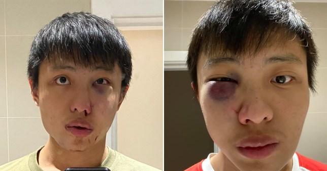 """""""Nuk e duam koronavirusin tënd""""/ Studenti aziatik dhunohet keq nga një grup anglezësh"""