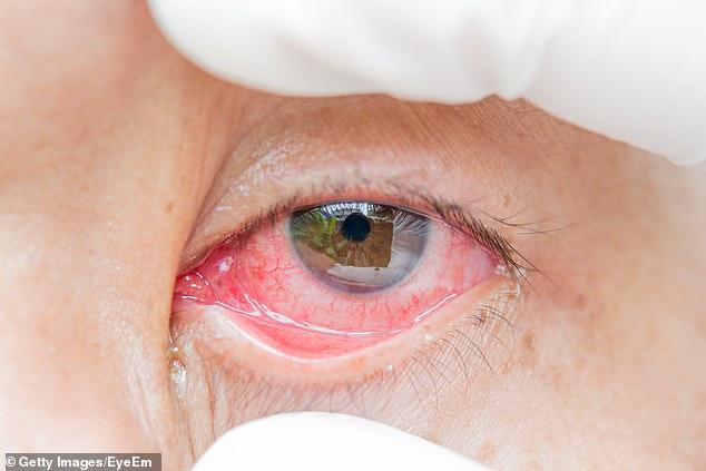 Gjetjet shqetësuese të studimit: Për sa ditë mund të qëndrojë Covid-19 te sytë e të infektuarve