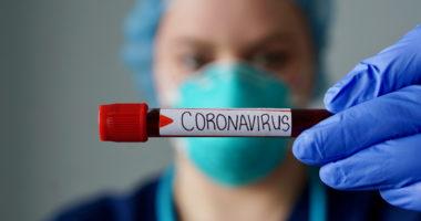 Konfirmohen 29 raste të reja me koronavirus, shkon në 599 numri i të infektuarve në Maqedoninë e Veriut