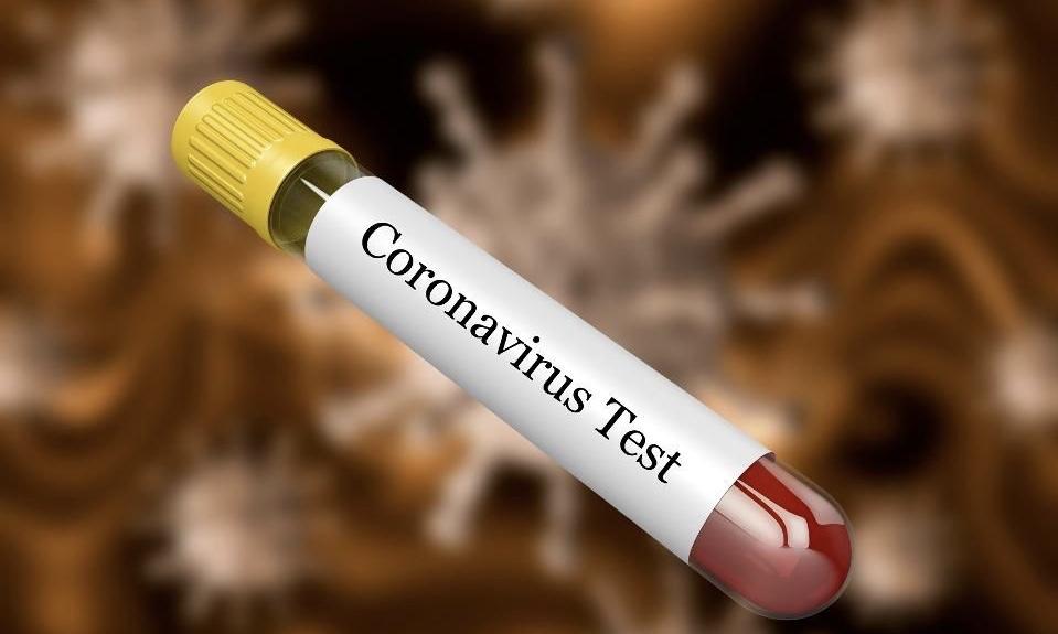 Shqipëria, e fundit në rajon për numrin e testeve mbi koronavirusin: Si po ja dalin Maqedonia dhe Kroacia