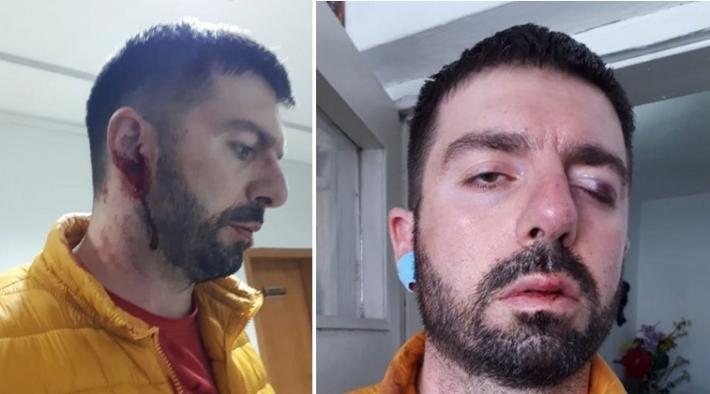 Me sy të ënjtur e vesh të gjakosur, gazetarja publikon fotot e djalit që u dhunua sot në protestë