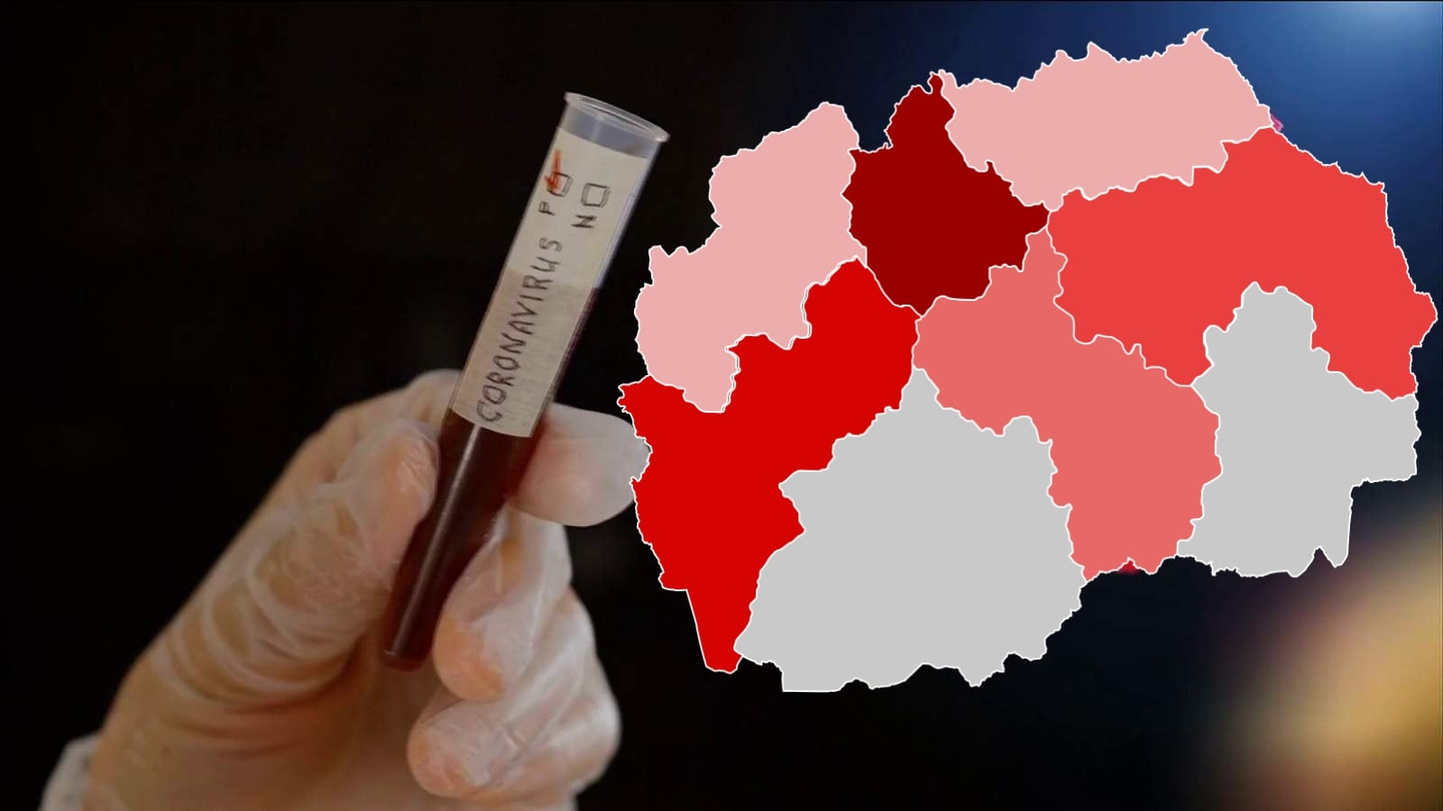 Një viktimë dhe 40 raste të reja me Covid-19 brenda ditës në Maqedoninë e Veriut