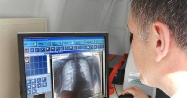 30% e pacientëve të shëruar nga Covid-19 do të kenë probleme kronike të frymëmarrjes