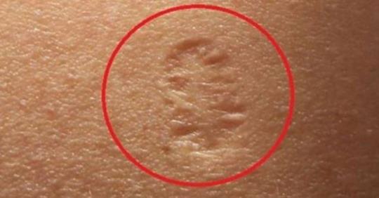 Keni një shenjë të rrumbullakët në krahun e majtë? Çfarë fshihet pas saj