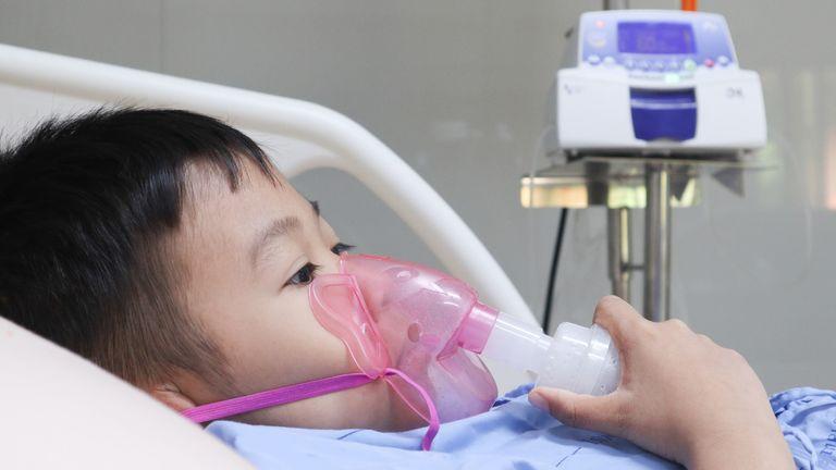 Ekspertët në SHBA dhe Britani: Sindroma e rrallë te fëmijët e lidhur me Covid 19