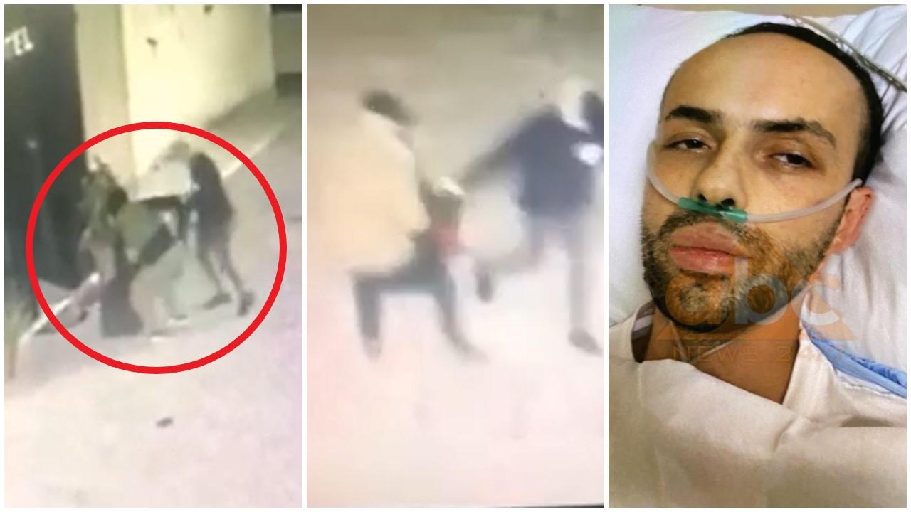 FOTO/ Me plagë plumbi të gangrenizuar, del fotoja e Eduart Lamajt në spital