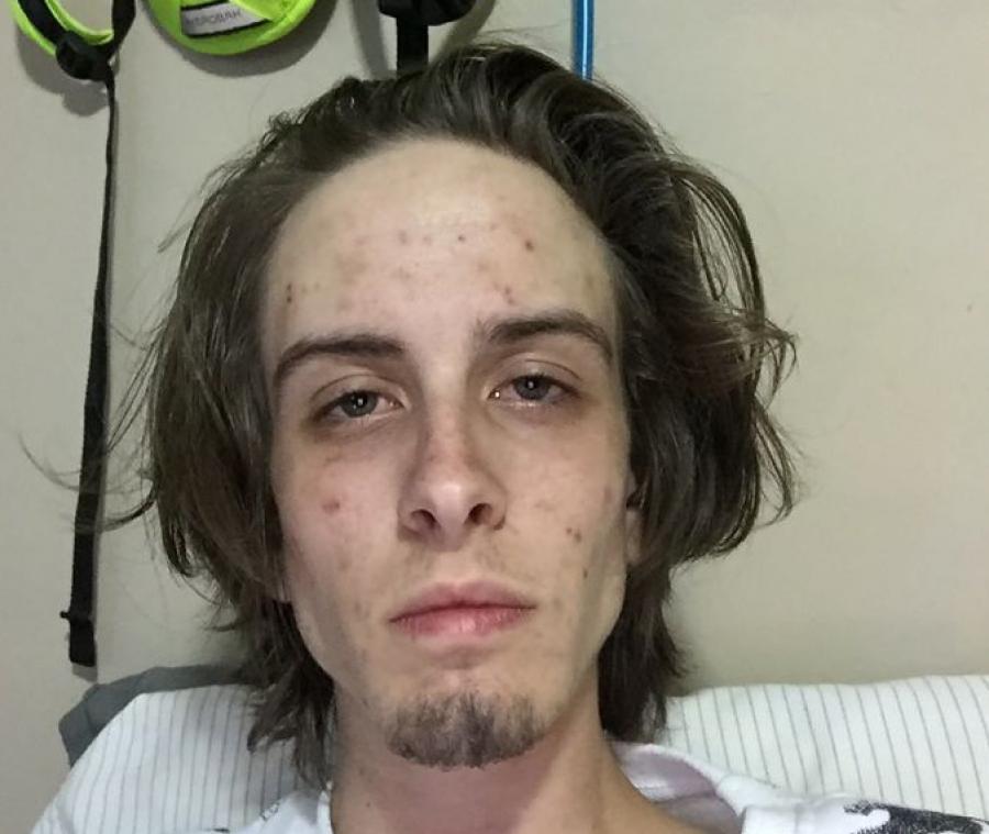 745 ditë pa drogë, përdoruesi pëson ndryshim drastik