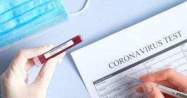 Rritet numri i të infektuarve dhe viktimave nga Covid 19, në 24 orë në RMV
