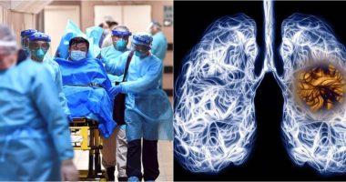 Mjekët italianë: Pasojat e Covid-19 mund të zgjasin gjithë jetën për pacientët