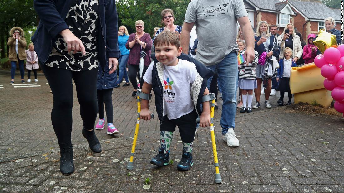 Ecën disa kilometra me këmbët e tij protezë, vogëlushi 5 vjeçar mbledh mbi 1 milion paund