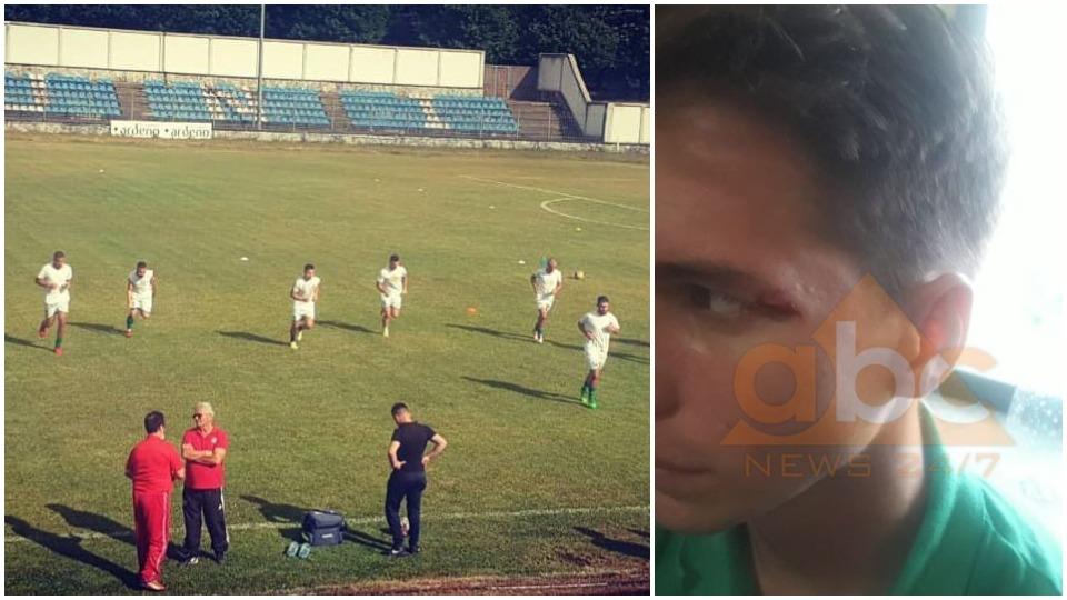 Skandal në Pukë, gjakosen dhe ngujohen futbollistët e Egnatias