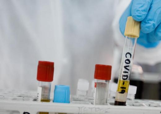 Fier, si u infektuan me koronavirus 7 punonjësit e Kadastrës nga kolegu