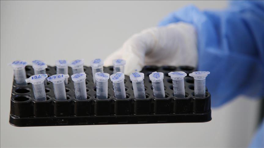 Shkon në 2024 numri i të infektuarve me Covid në Malin e Zi, në 24 orë humbin jetën dy persona