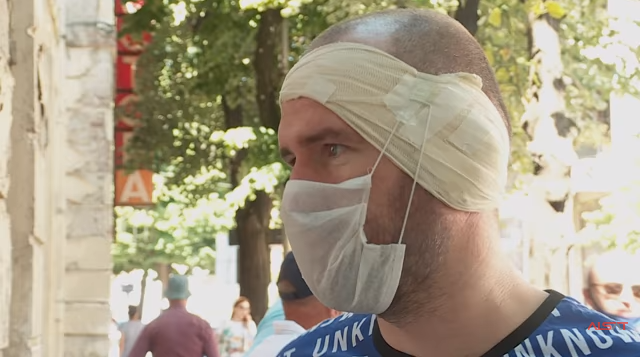 I riu shqiptar denoncon dhunën: Polici serb më rrahu derisa më ra të fikët
