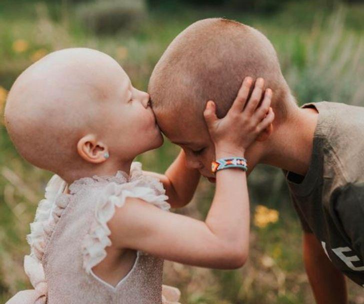 E motra në luftë me kancerin, vëllai pret flokët që të mos ndihet e vetme