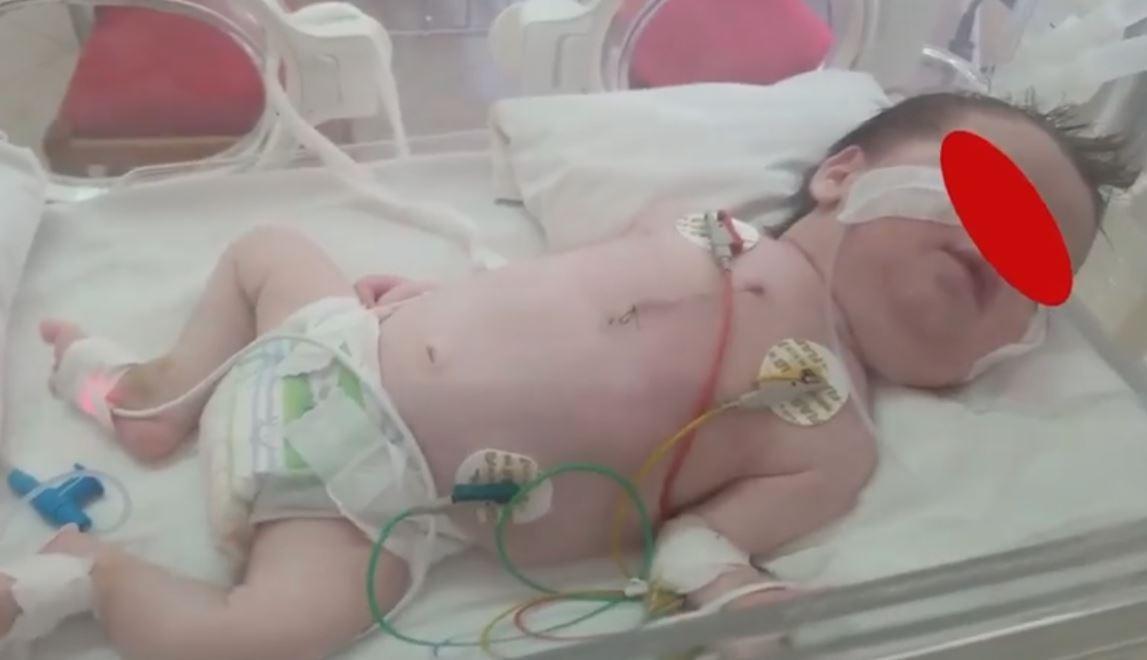 Ndodh mrekullia në QSUT: Operacioni i vështirë i shpëton jetën foshnjes 12 ditëshe