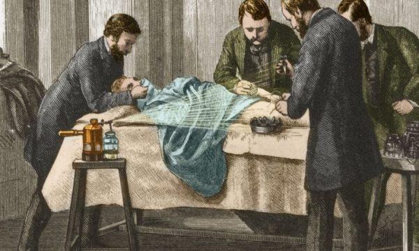 Nga sterilizimi i duarve tek instrumentet, si operonin kirurgët e parë