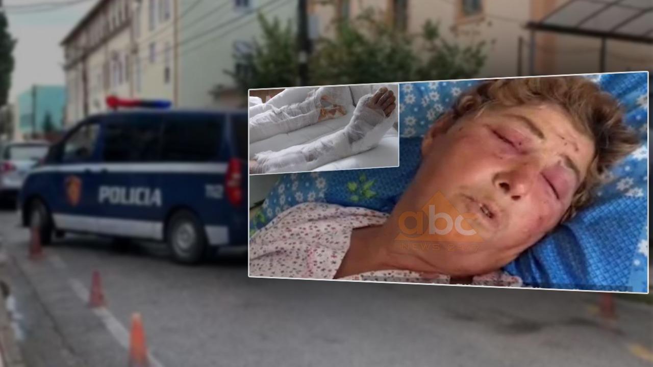 Masakroi fqinjën pas konfliktit për gardhin, gjykata e Shkodrës lë në burg Hilë Simonin