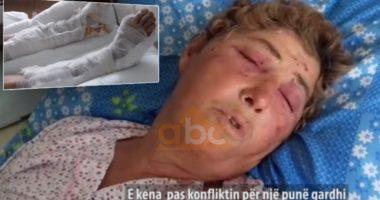 Fqinji e futi nën rrotat e makinës, bëri si e vdekur të shpëtonte: Rrëfimi tronditës i gruas