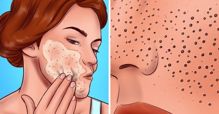 Keni pore të mëdha? Këto janë gabimet që bëni çdo ditë me lëkurën tuaj