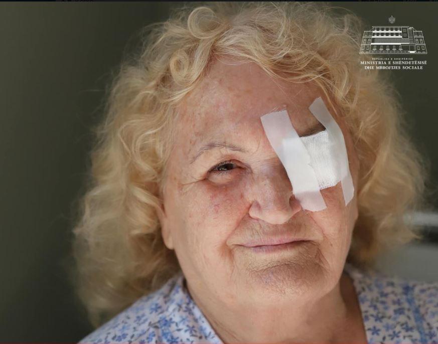 Lentet falas, në 6 muajt e parë të vitit mbi 1 mijë qytetarë përfituan paketën e plotë të kataraktës
