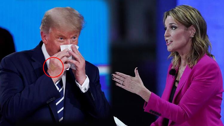FOTO/ Kjo shenjë në dorën e Trump tërhoqi vëmendjen e mediave në SHBA