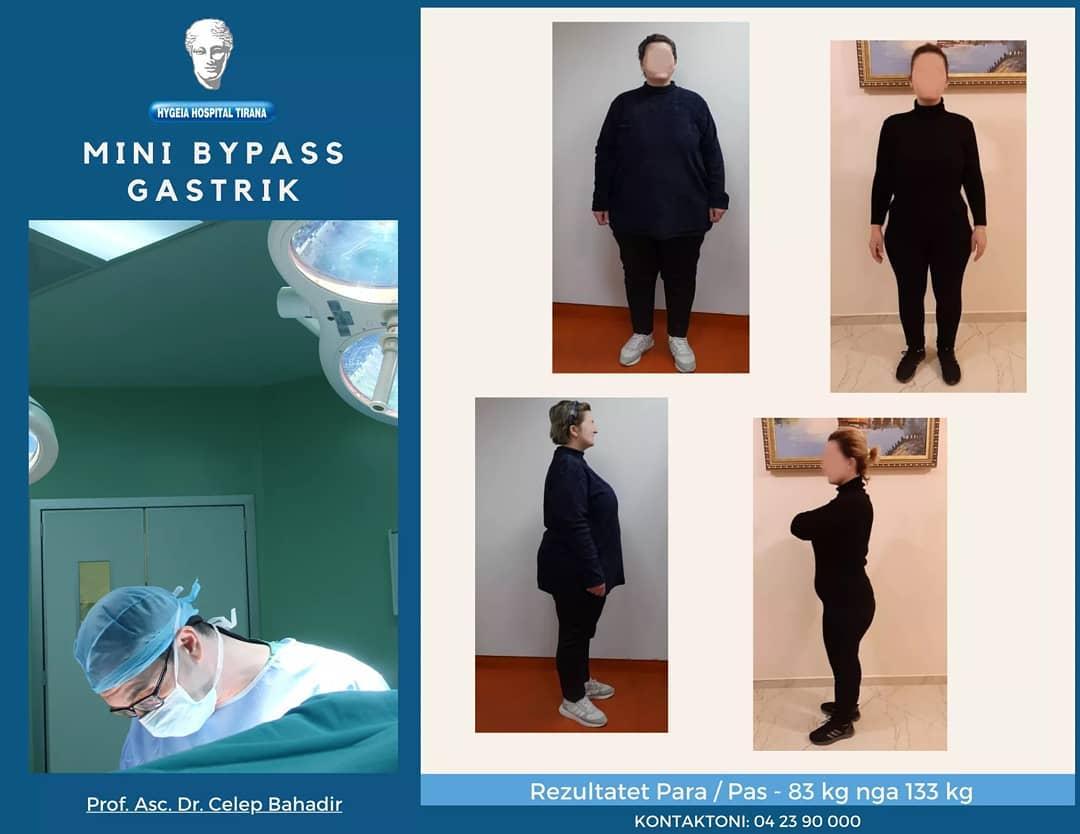 """Si ra 50 kilogram në 10 muaj pacientja në spitalin """"Hygeia"""""""