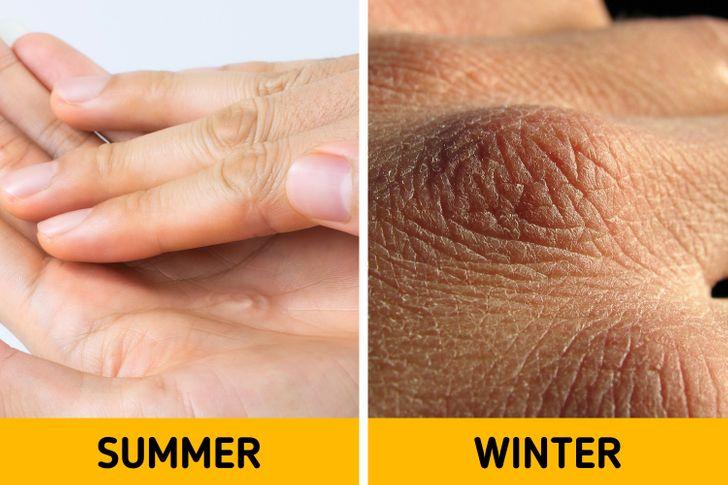 7 gjëra që i ndodhin trupit tuaj, në dimër