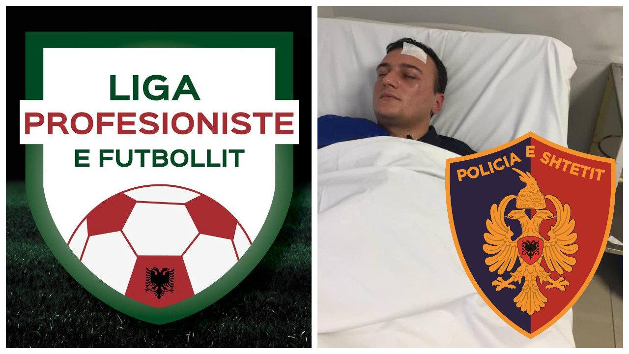 Dhunimi i arbitrit, Liga e Futbollit: Vetëm Policia e Shtetit dhe Prokuroria e parandalojnë