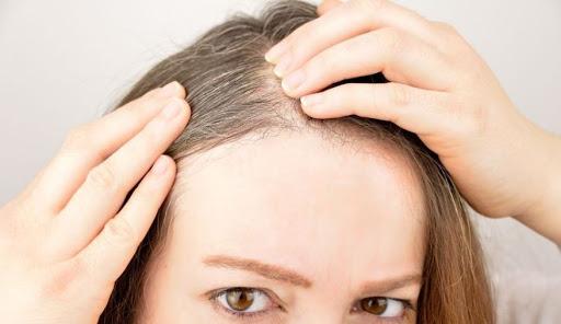 Tre arsye pse ju shfaqen thinjat në flokë