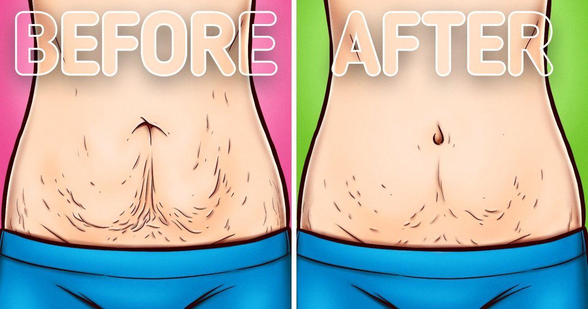 Si të përmirësoni lëkurën e trupit tuaj, pas dobësimit apo lindjes