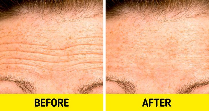 5 mënyra natyrale si t'i bëni rrudhat në fytyrë më pak të dukshme