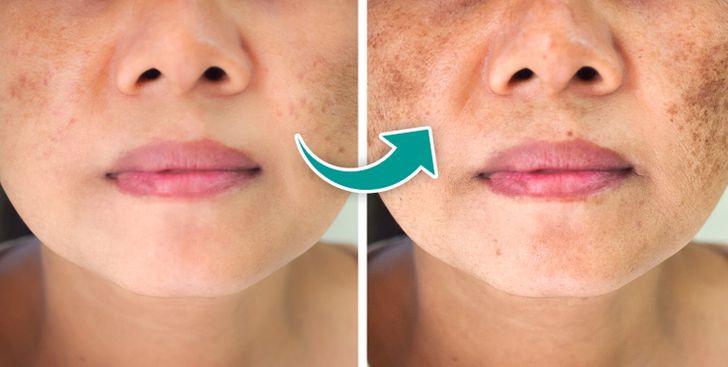 7 gjërat që mund të shkaktojnë njolla të errëta në fytyrë