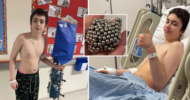 Gëlltiti 54 topa magneti për një eksperiment të shkollës, 12-vjeçari bëhet gjashtë orë operacioni