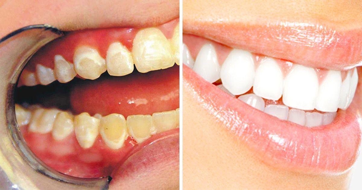 Ushqimet që duhet të hani për dhëmbë të bardhë dhe të shëndetshëm