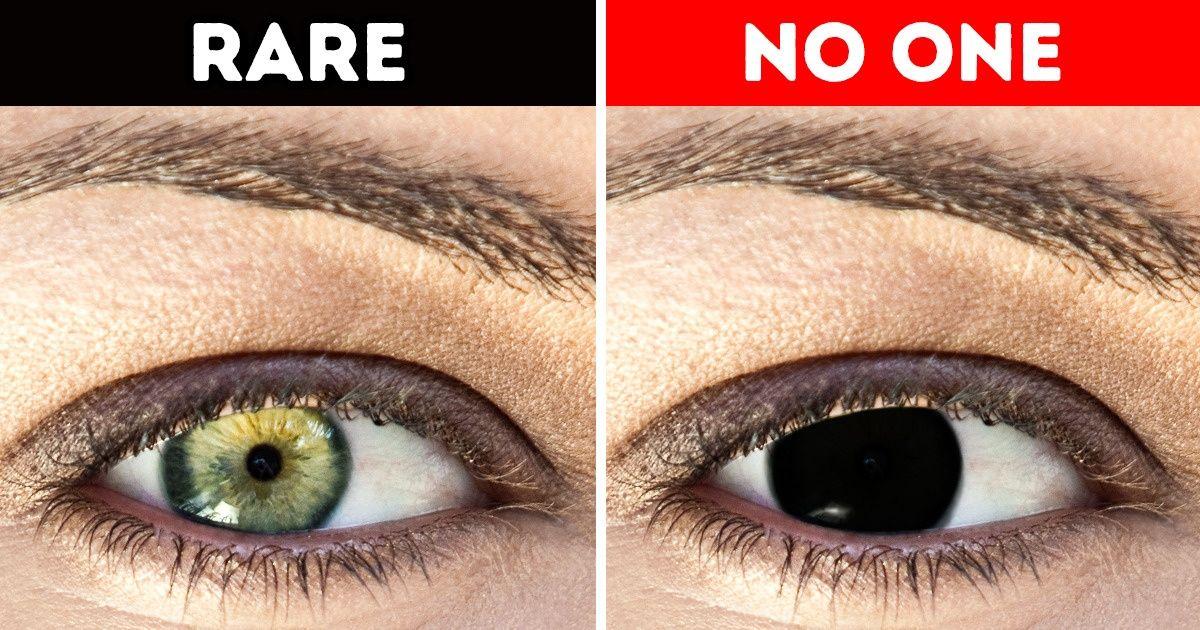 Pse njerëzit nuk kanë sy plotësisht të zinj