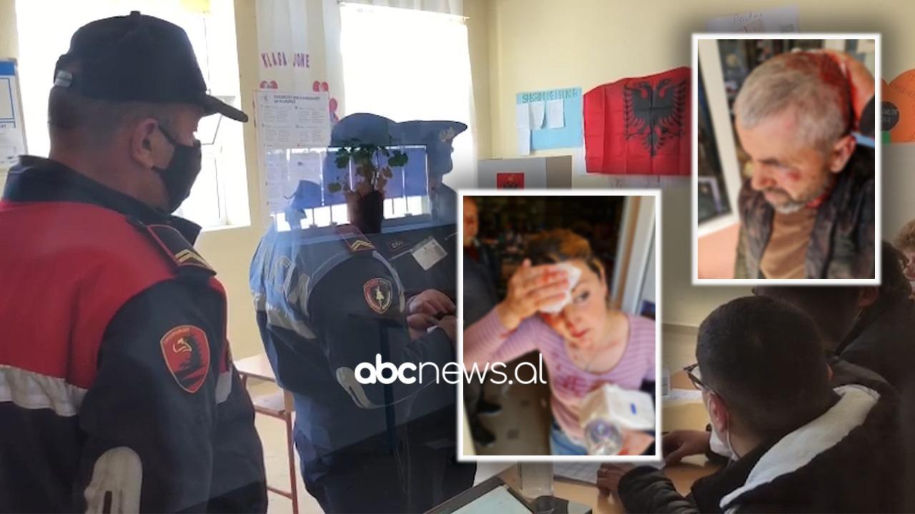 Përplasja në Maliq, burrë e grua me plagë të rënda në kokë, dëshmitari: Do votonin familjarisht