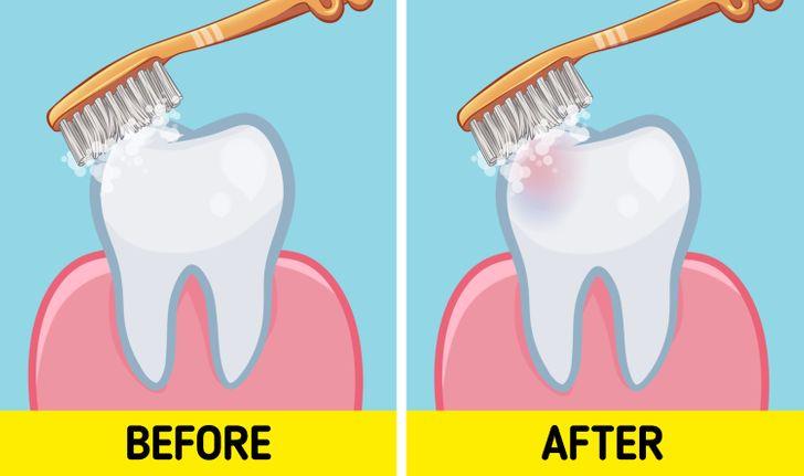 Para apo pas mëngjesit? Dentistët tregojnë kur duhet t'i lani dhëmbët