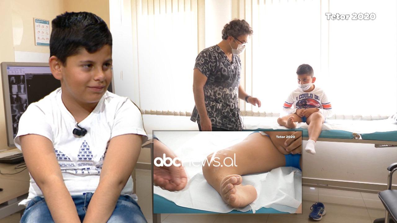 7-vjeçari që donte protezë nis të ecë pas operacionit të 15-të, nëna nuk përmban emocionet