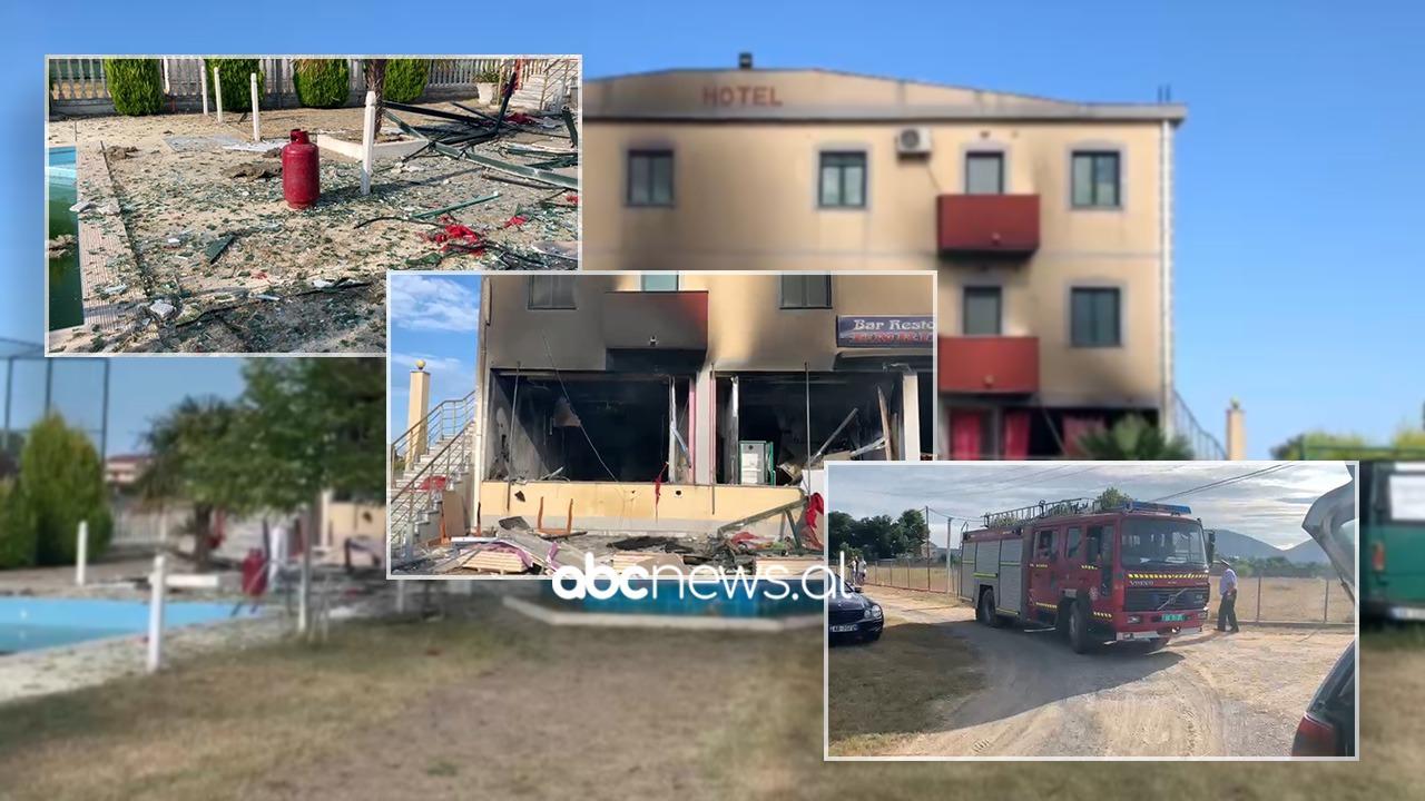 Shpërthimi i bombolës në një hotel në Velipojë, infermierja: Janë rëndë, me djegie në 90% të trupit