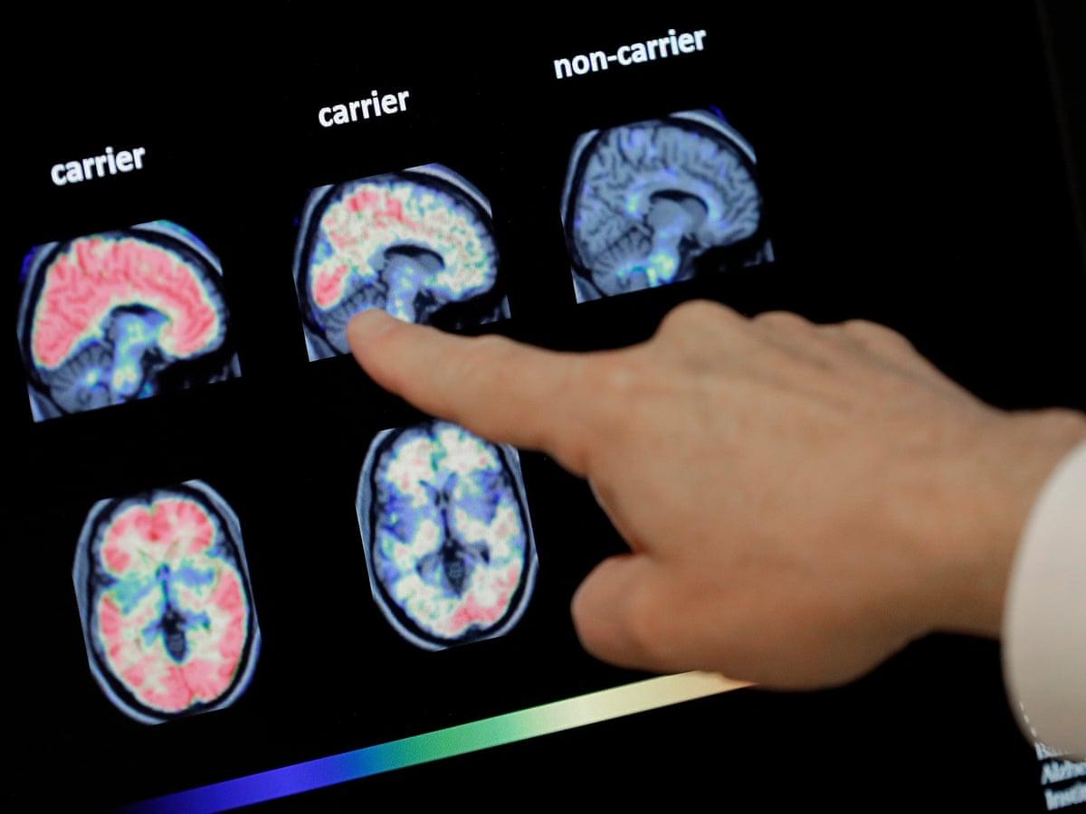 Inteligjenca artificiale mund të zbulojë demencën vite para simptomave të para